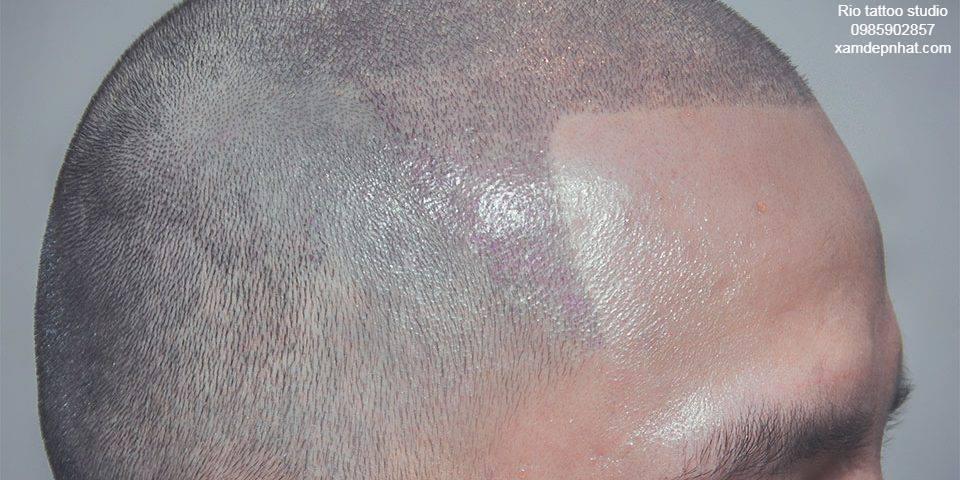 Điêu khắc chân tóc là giải pháp tốt nhất cho những ai bị hói đầu tốt nhất và ít tốn kém nhất.